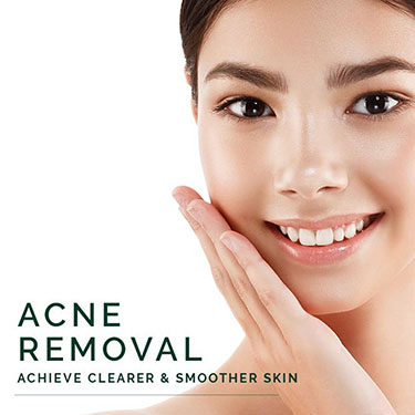 Acne Removal